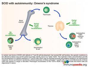 scid-with-autoimmunity-omenns-syndrome