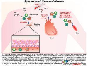 Symptoms of Kawasaki disease