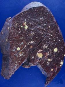 metastatic stage hepatocellular carcinoma
