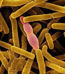 Bacillus_anthracis_02