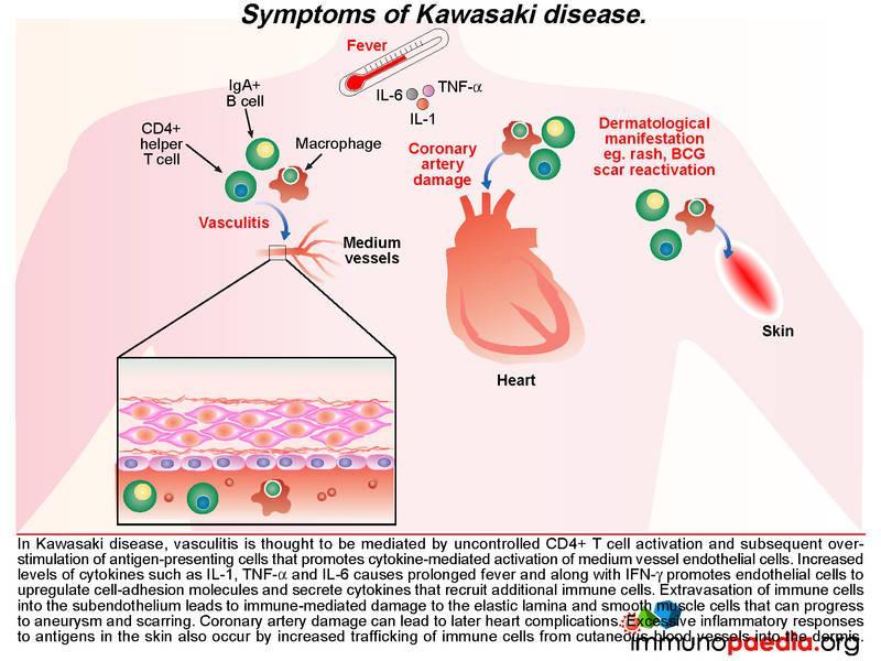 Platelets And Kawasaki