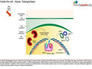 Ataxia-telangiectasia_Page_4.1