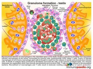 Granuloma formation-testis