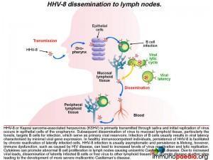 HHV-8-disseminatiom-to-lymph-nodes