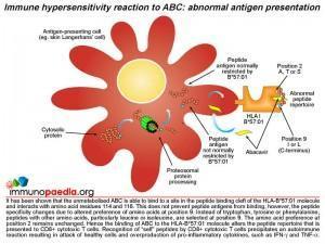 Immune hypersensitivity reaction to ABC abnormal antigen presentation