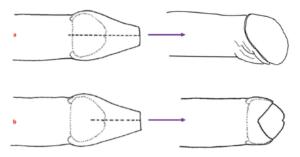 Longitudinal dorsal foreskin cuts