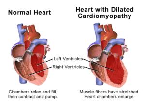Normal heart vs heart with cardiomyopathy
