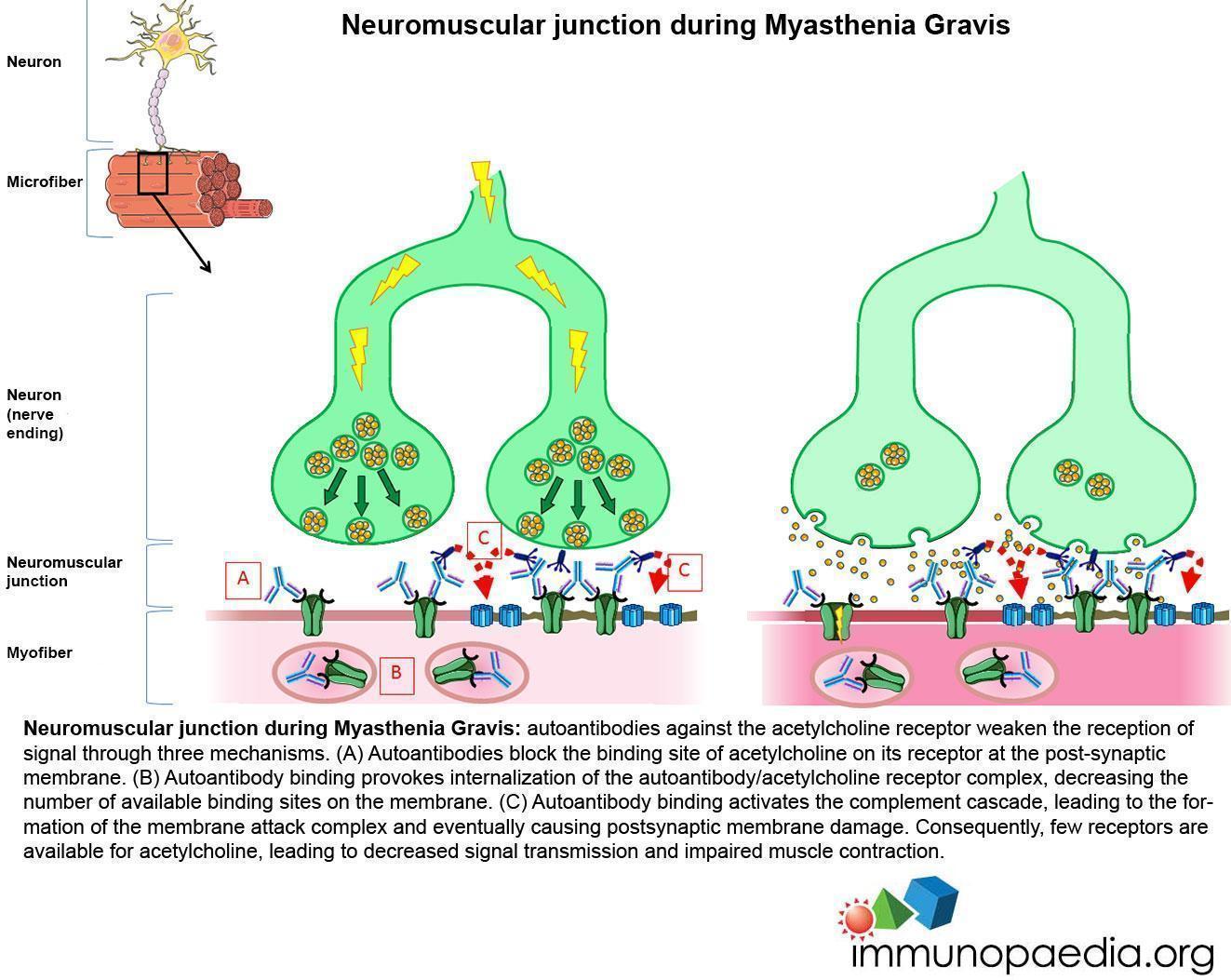 Neuromuscular junction during Myasthenia Gravis