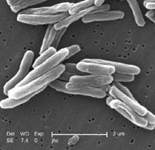EM of Mycobacterium tuberculosis (Janice Carr, WIkimedia Commons)