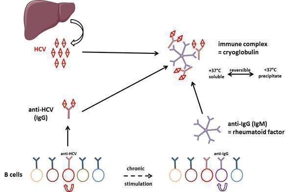 general mechanism of cryoglobulin