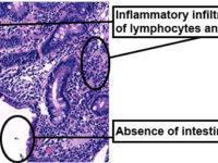 duodenal biopsy