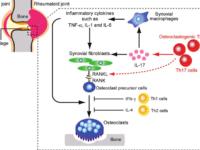 Regulation of osteoclast differentiation in Rheumatoid arthritis: Upregulation of proinflammatory cytokines activates osteoclastogenesis. Kazuo Okamoto and Hiroshi Takayanagi, 2011,Arthritis Research and Therapy.